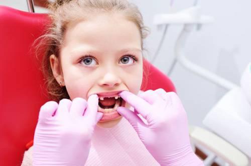 Постоянные проблемы «временных». Нужно ли лечить ли молочные зубы?