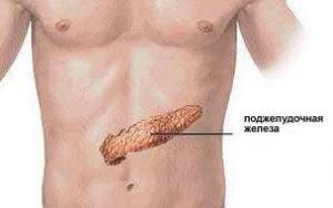 14 признаков того, что у человека может развиваться рак поджелудочной железы
