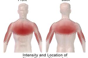 Торакалгия — что это? Причины и лечение торакалгии