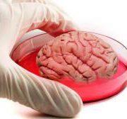 Десятимесячный мини-мозг оказался похож по нейронной активности на мозг недоношенных детей